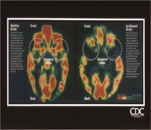 PET scan of brain showing diminished areas of activity with  PTSD,  from CDC